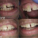 Upper Anterior Composite Fillings