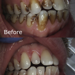 Before & After Cleaning Teeth With Air Abrasion