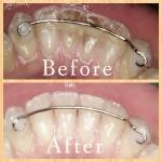 Dental Air Polishing Before & After
