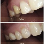 Crown Before & After