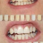 Internal Bleaching & Whitening Before & After