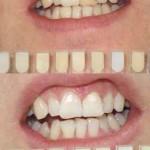 Internal Bleaching & Whitening Before & After