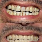 Upper and Lower dental crowns
