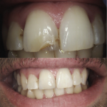 Composite Repair Broken Front Tooth