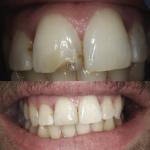 Composite Repair Broken Front Tooth