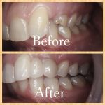 Dental Bridge. Excellent Cosmetic Result.