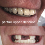 Before & After Photo Upper Chrome Cobalt Partial Denture