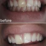 Internal Bleaching Before & During