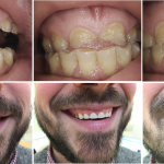 Natural Looking EMax Crowns