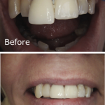 Discoloured Old Crowns Replaced With A Natural Looking EMax Crown & A Veneer