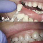 Before & After- A New Zirlux Crown