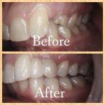 Dental Bridge. Excellent Cosmetic Result.